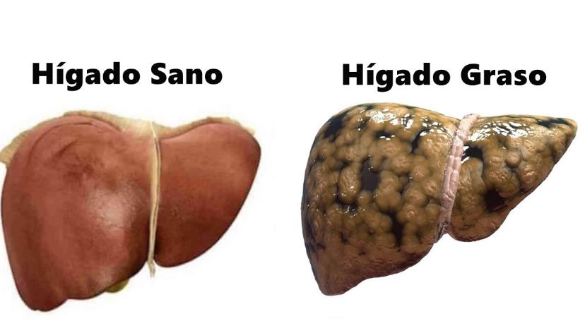 Hígado graso: Causas, consecuencias y tratamiento. | DXN CAFÉ SALUDABLE